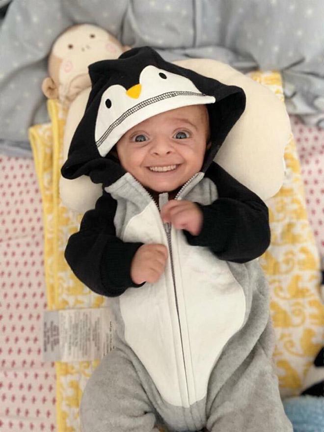 Baby with photoshopped smile.