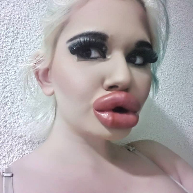 When lip fillers get out of control...