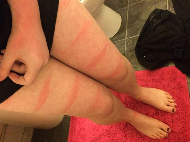 Don't wear ripped jeans in the sun.