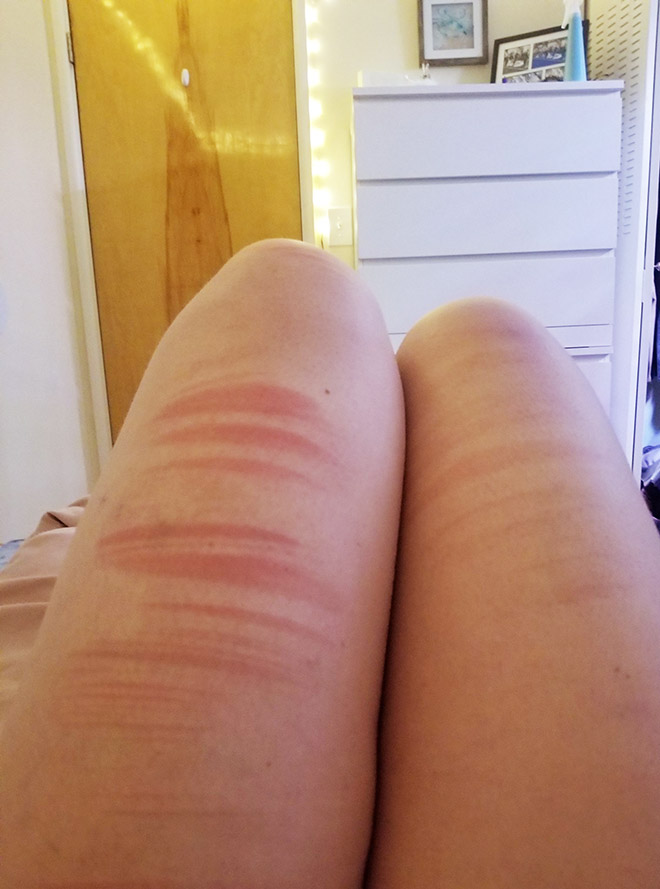 Don't wear ripped jeans in the sun or your hot dog legs will get grill marks.